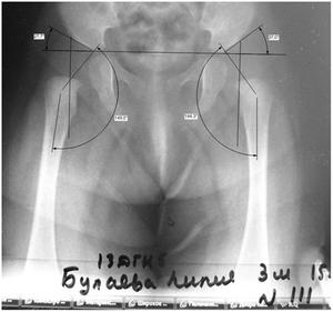 Здоровый тазобедренный сустав у детей фото