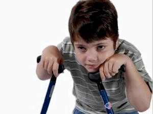 Двигательные нарушения у детей фото