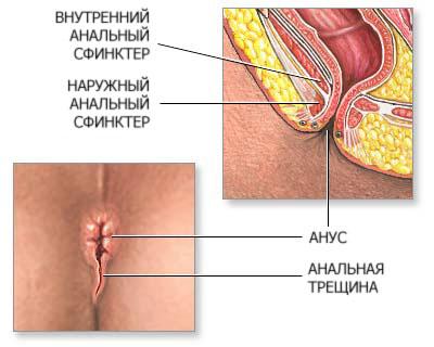 виды паразитов у человека в кишечнике