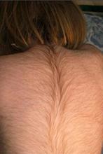 На спине новорожденных черные волосы