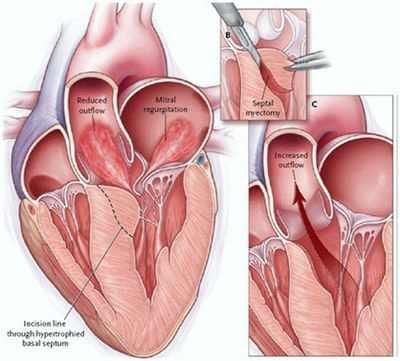 Гипертрофическая кардиомиопатия у детей лечение Как избавить от ...