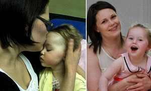 Онихомикоз у детей лечение Безотлагательные мероприятия Клиники и врачи