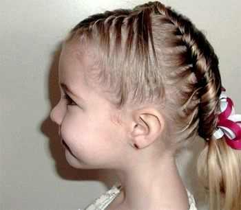 Алопеция у детей - причины, симптомы, диагностика и лечение 17