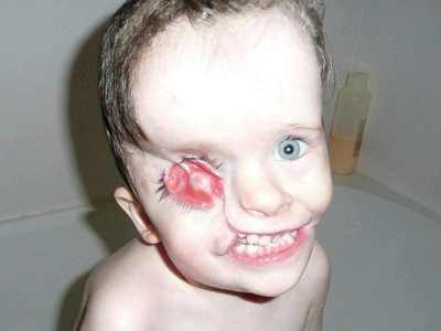 Шрамы, рубцы у ребенка Медицинская консультация 45