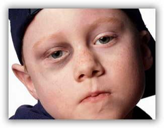как лечить синяк на глазу от удара