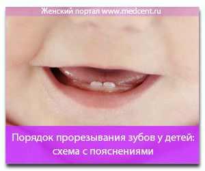 неправильный порядок прорезывания зубов у ребенка