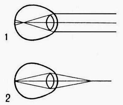 Рассеивающие линзы для дальнозоркости или близорукости