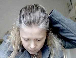 Седой волос у ребенка в 12