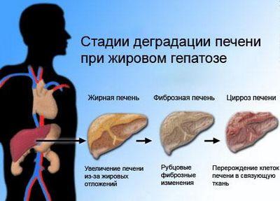 Алкогольный гепатит виды
