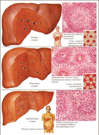 Народное средство при заболевании печени